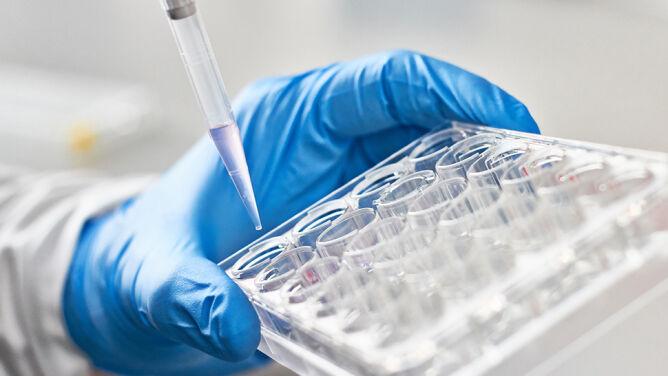Nowatorska metoda diagnozowania raka pęcherza